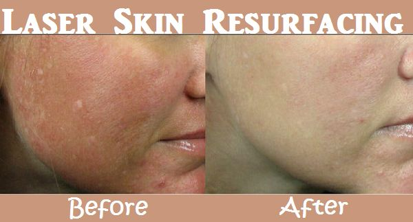 Laser Skin Resurfacing and its Side Effects