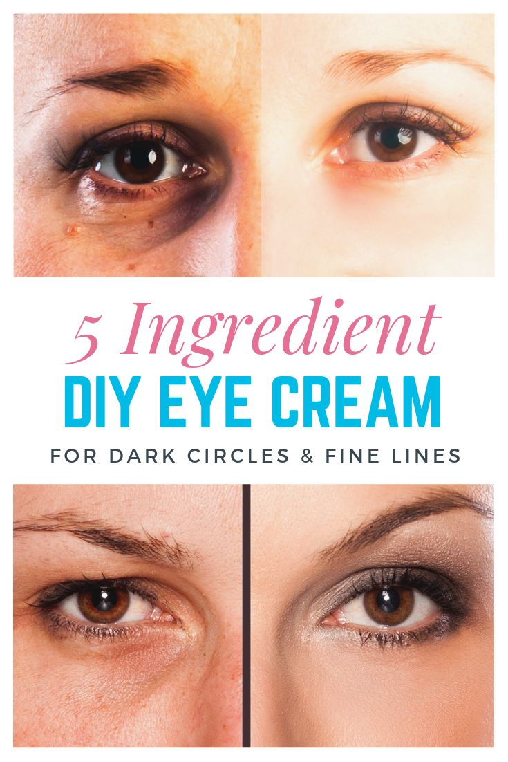 DIY Eye Cream for Dark Circles and Wrinkles
