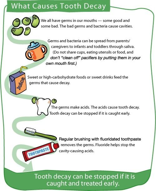 What causes tooth decay? Tooth decay can be stopped if it is caught and treated early.  #Dentist or #Hygienist