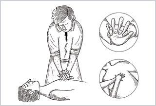 Aprende a practicar la maniobra de Reanimación Cardiopulmonar
