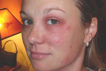 poison ivy rash on eyes images | Picture Upload Area - (www.poisonivy.us)