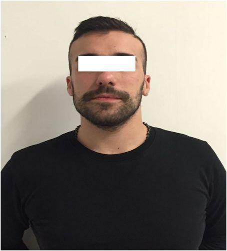 Aveva tentato di rapinare una gioielleria a Pescara foggiano beccato dalla polizia