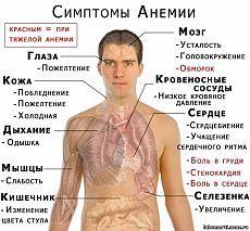 Anemia da carenza di ferro nei bambini.  Sintomi, cause e trattamento