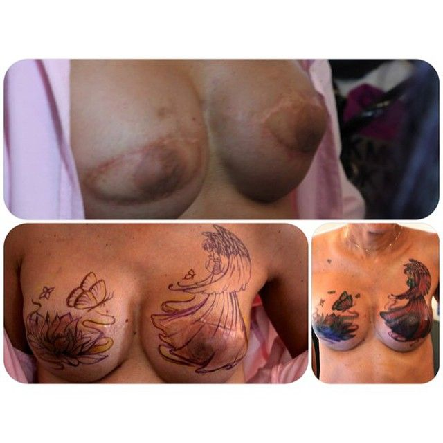 Breast Cancer Survivor Has Hummingbird Tattoo To Cover: Diana's Before & After At #pinktattooday NYC. Artist