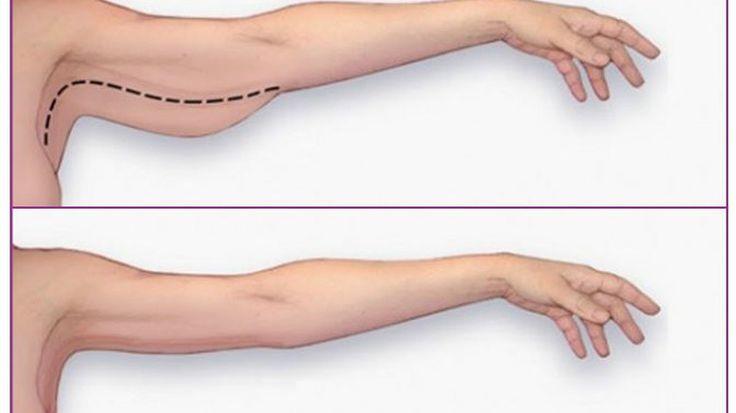 Oto sposób, dzięki któremu pozbędziecie się nadmiaru skóry