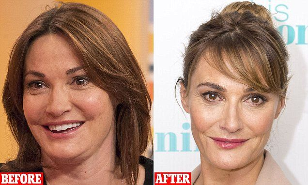 Sarah Parish: I had pioneering £3,500 face treatment to help my career