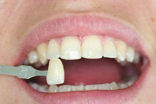 Uno dei benefici delle faccette in ceramica è quello di ridonare la naturale lucidità allo #smalto #dentale.