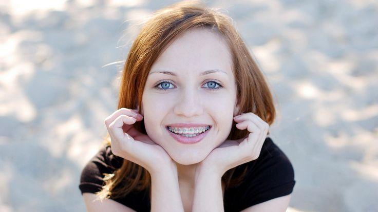 ¡Inicia tu ortodoncia! Limpieza + Diagnóstico y consulta + Colocación de brackets metálicos de $9,500 a $950 | Agenda tu cita: 6723-9828 | Cel. 55-3035-1132 | Pide tu Cuponzote: http://bit.ly/1PWn4JN