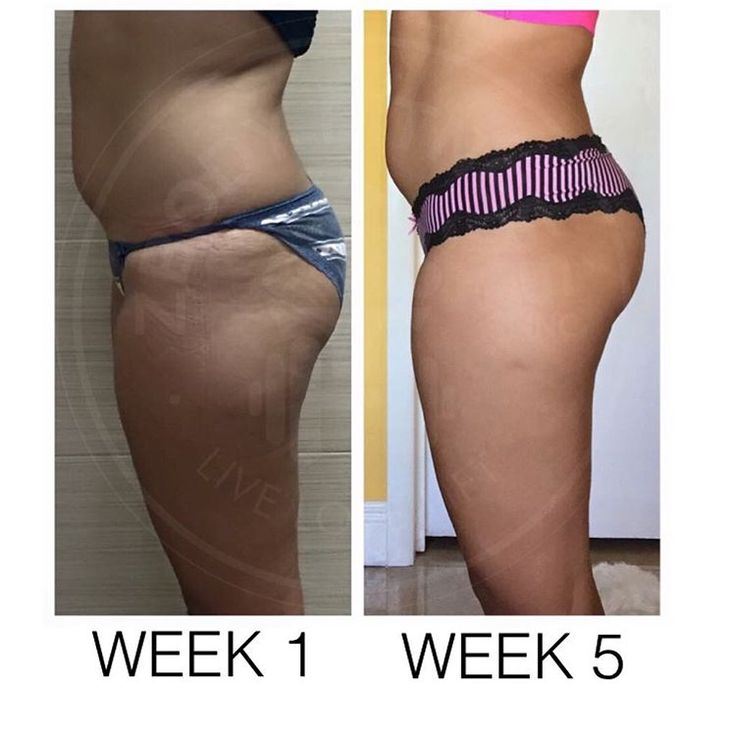 Amazing progress from my client Marjorie! Get started today with an instant download onto any smart phone or computer  To see others transforming their bodies  @zbodyfitnessinc #bootybyzoe #zbodyfitnessinc