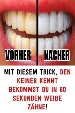 Mit diesem Trick, den keiner kennt bekommst du in 60 Sekunden Weiße Zähne