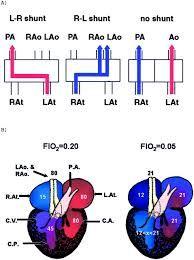 Image result for pulmonary shunt