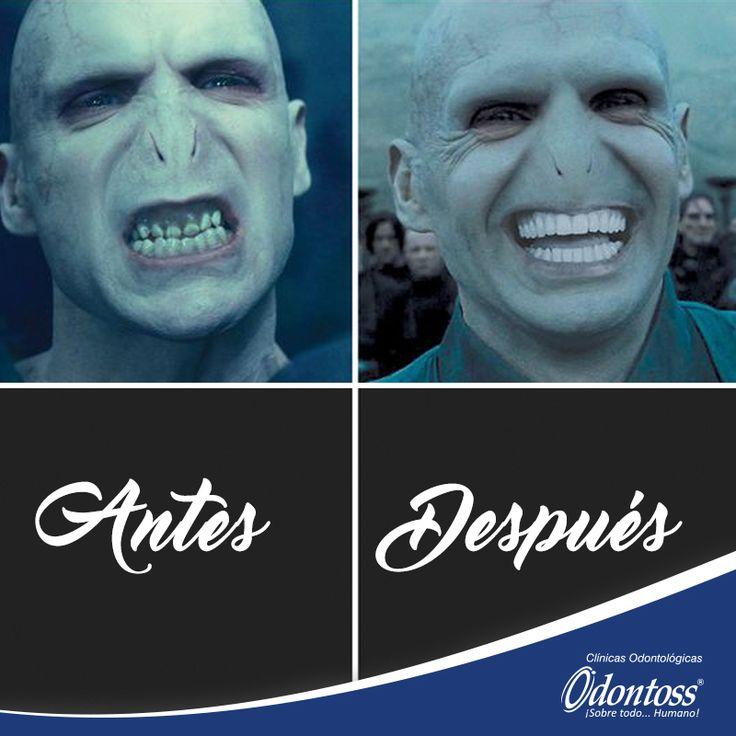 Lord Voldemort también visitó nuestras clínicas y salió feliz. Permítenos cambiar tu vida, para que sonrías con tranquilidad y confianza. Buen viernes para todos!!