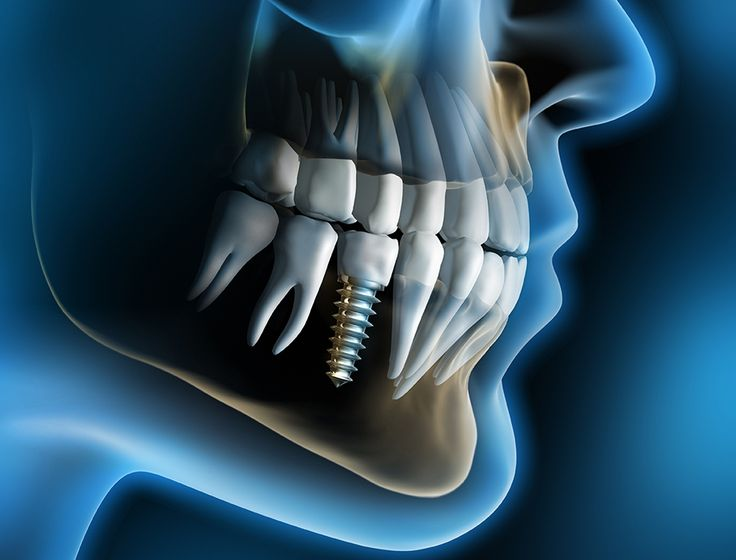 Surprising facts about dental implants that you did not know   #dentalimplants #dentists