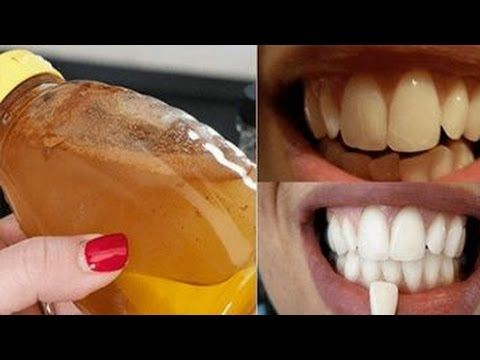 Dentists do not want this to come to light; THIS is the method for teeth whitening - YouTube