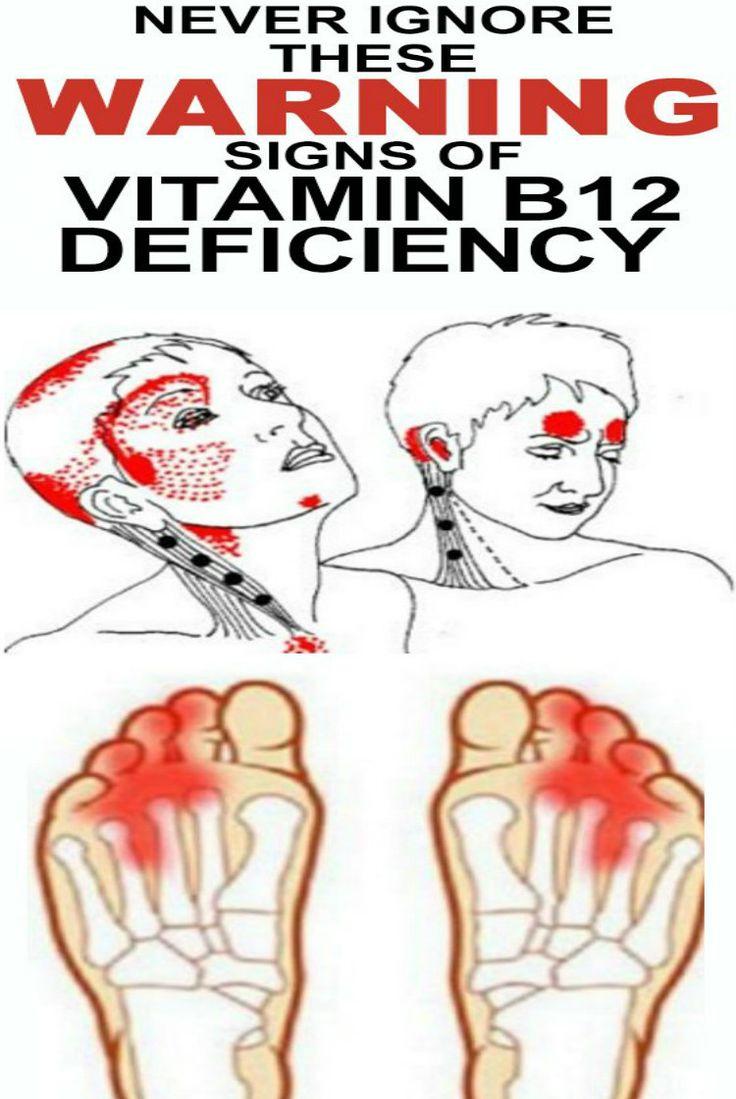 Mejores 74 imágenes de Medical Tips en Pinterest | Acupresión ...