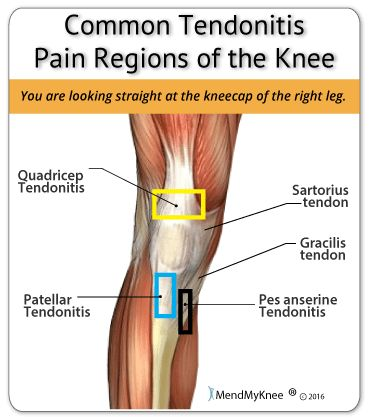 Knee Tendonitis Anatomy. Common areas of the knee that are afflicted with tendonitis. The quadriceps and area below the knee cap are the two most common regions.
