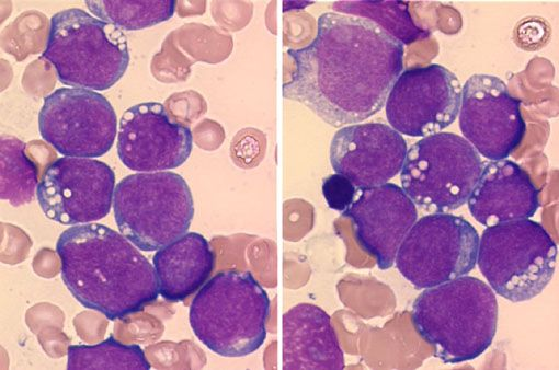 B-cell lymphoma, unclassifiable, with features intermediate between diffuse large B-cell lymphoma and Burkitt lymphoma is a new category in the 2008 WHO classification designed to describe high-grade B-cell lymphomas with morphologic, immunophenotypic, and/or genetic features that prevent clear classification as either entity.  In this case, the cells exhibit numerous features of Burkitt lymphoma, including medium-sized monomorphic cells that are CD10(+), show a high proliferation rate, and…