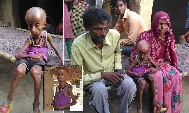 Rupesh Kumar, from Hanumanganj, India, has the body of a 160-year-old. His condition, known as Hutchinson-Gilford progeria, affects just one in eight million people and is incurable.