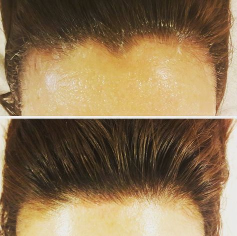 Alicia Yoon breaks down the next biggest trend in beauty procedures: hairline microblading.