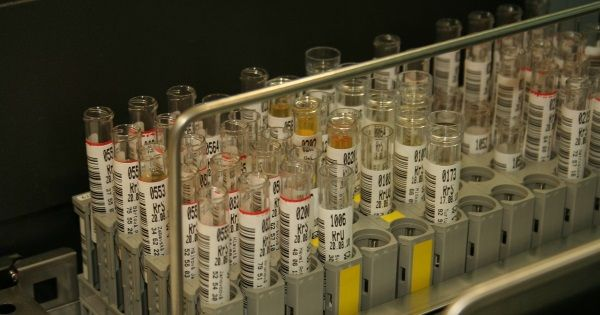 top termékek a férgek kezelésére gyomorrák esmo irányelvek
