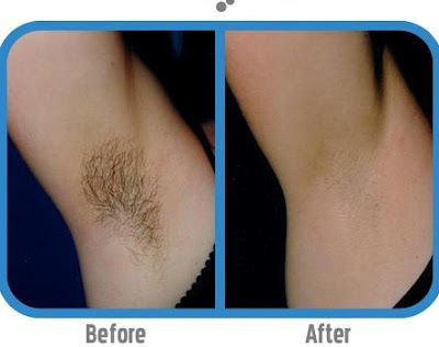 Permanent facial hair unwanted A solution to