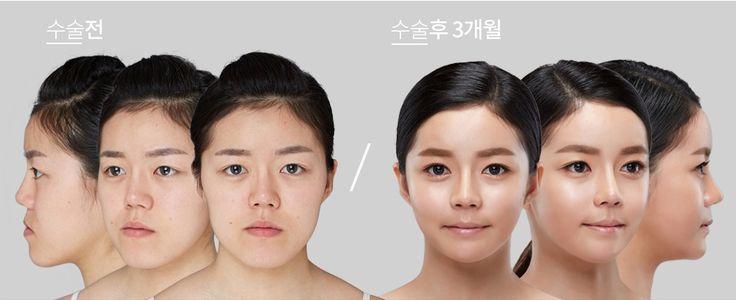 Koreksi Tulang Wajah di Wonjin - Bila Anda perhatikan, tulang wajah para artis baik dalam maupun luar negeri rata-rata kecil dan ramping bergaris V! Apa sih rahasianya? Mari kita cari tahu bersama-sama!
