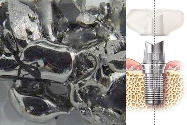http://www.degidi.it/ Il titanio è una risorsa molto importante nel settore #implantologico perché è un materiale completamente biocompatibile. Leggi tutto...