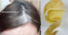Začínajú sa vám vytvárať šediny a radi by ste sa ich zbavili bez farbenia vlasov? Tak skúste tento čisto prírodný a extrémne účinný recept.