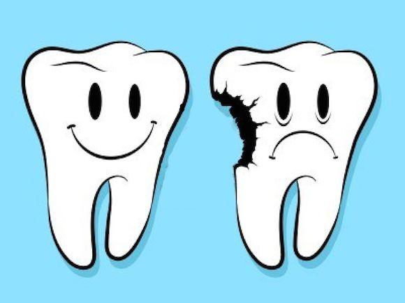 carie dentale rimedi naturali