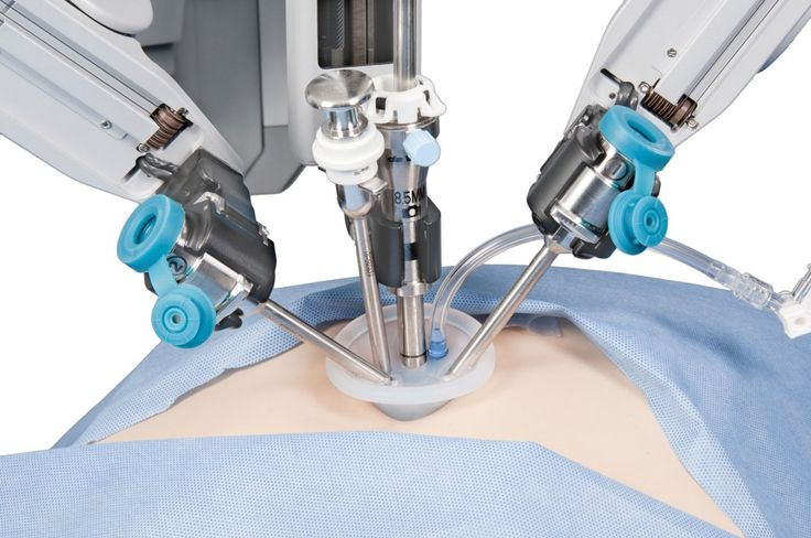Google and Johnson & Johnson working together on surgical robots - http://vr-zone.com/articles/google-johnson-johnson-working-together-surgical-robots/89770.html