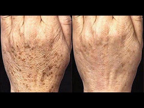 Este Potente Remedios caseros para las manchas de las manos. Como aclarar la piel de las manos - YouTube