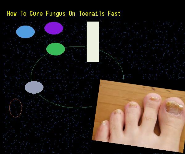 How to cure fungus on toenails fast - Nail Fungus Remedy. You have nothing to lose! Visit Site Now