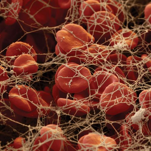 Red blood cells trapped by fibrin threads