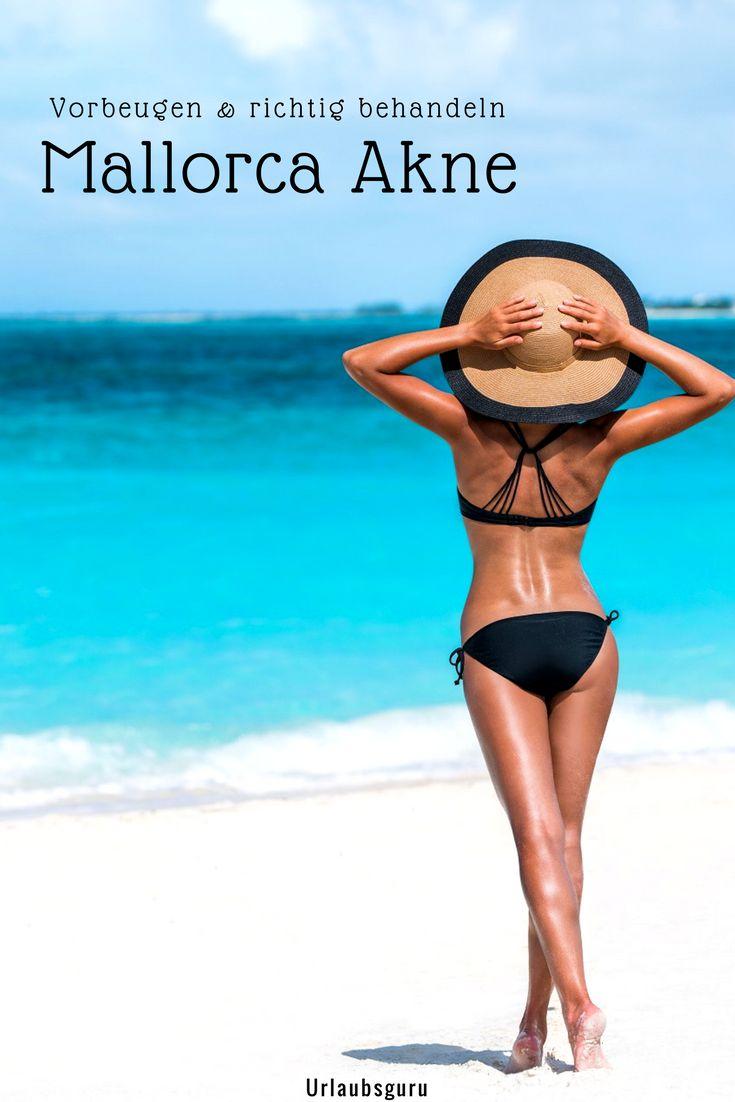 Habt ihr schon einmal was von der berüchtigten Mallorca Akne gehört oder wart selbst von der Sonnenallergie betroffen? Ich habe wertvolle Tipps, mit denen ihr die lästigen Pickelchen und den unangenehmen Juckreiz schnell loswerdet. So steht einem unbeschwerten Urlaub auf Mallorca nichts mehr im Weg. #mallorca #tipps #travel #urlaub #magazine