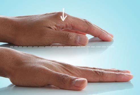Slideshow 10 Ways to Exercise Hands and Fingers - improve flexibility and strength