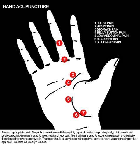 Pijnpunten hand