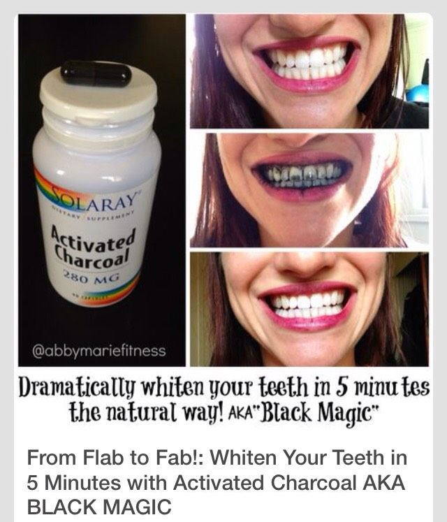 How to get white teeth in 5 minutes