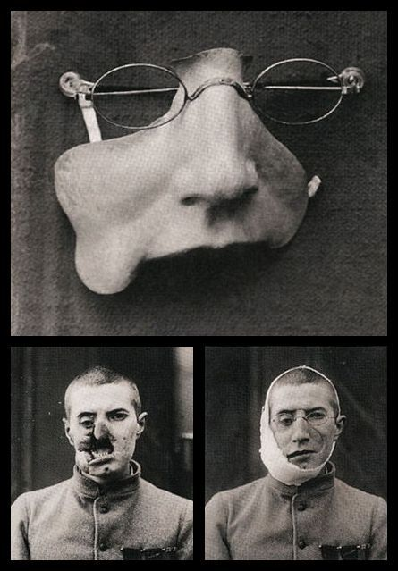 civil war face prosthetics