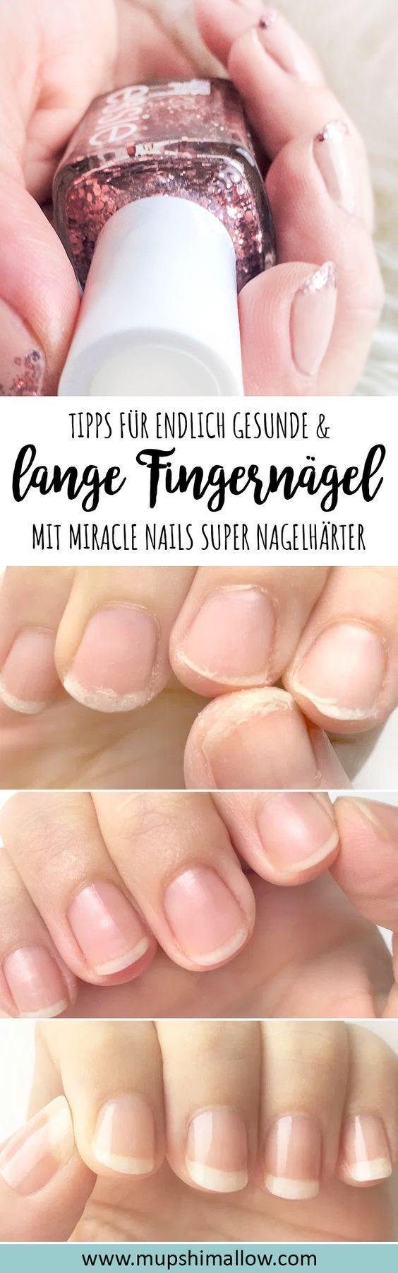 Endlich lange und gesunde Fingernägel – Miracle Nails Super Nail Hardener – beauty