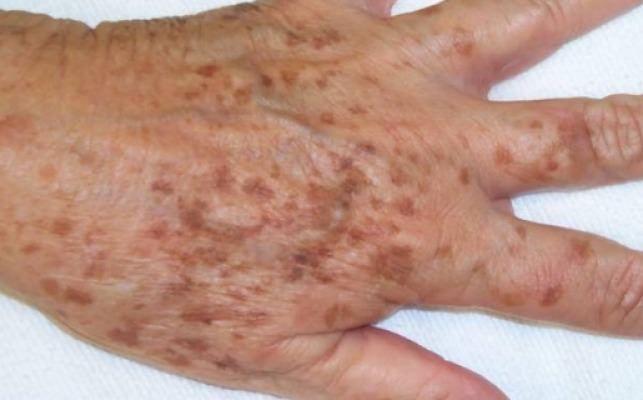 Femeile asiatice, chiar si cele mai in varsta, au o piele de invidiat. Chiar daca ele fac parte din rasa galbena, asta nu impiedica aparitia petelor de pe piele asociate cu inaintarea in varsta. Secretul lor sta in utilizarea unei retete naturale de curatare a petelor asociate imbatranirii. Aceasta