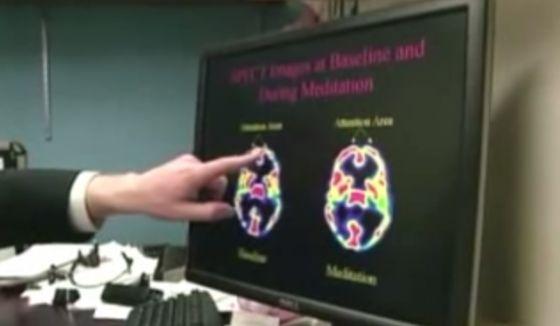 Speaking in Tongues Medical Study Proves Holy Spirit Praying | http://gracevine.christiantoday.com/video/speaking-in-tongues-medical-study-proves-holy-spirit-praying-4056