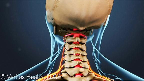 Cervical radiculopathy is pain starting in the upper spine (neck) that causes pain, numbness, or weakness in the neck and going down the…