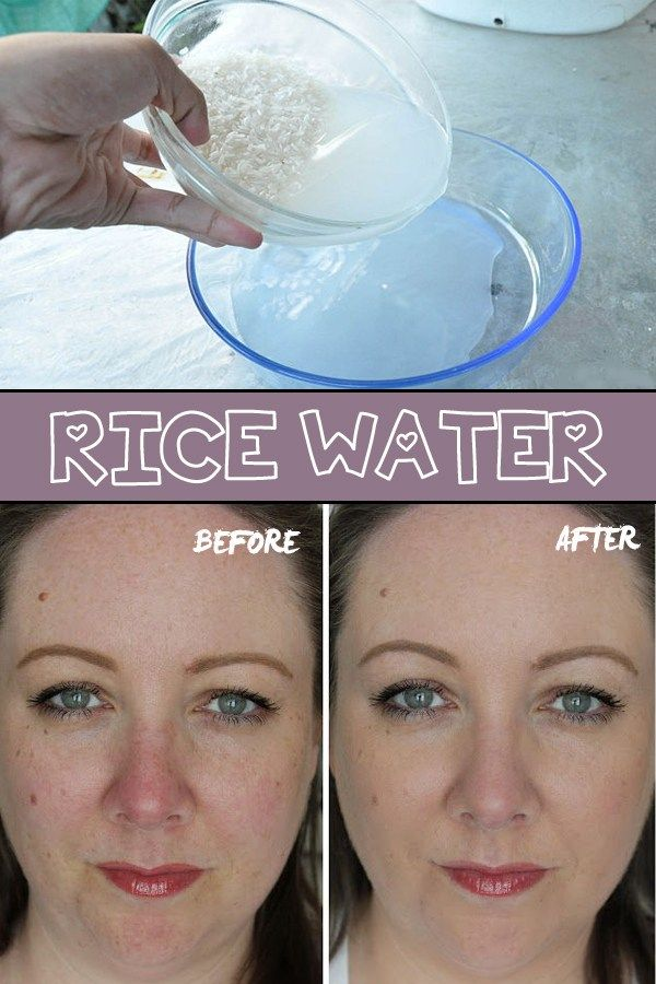 RICE WATER: for skin and hair