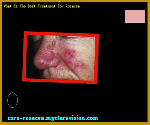 What Is The Best Treatment For Rosacea 193502 - Cure Rosacea