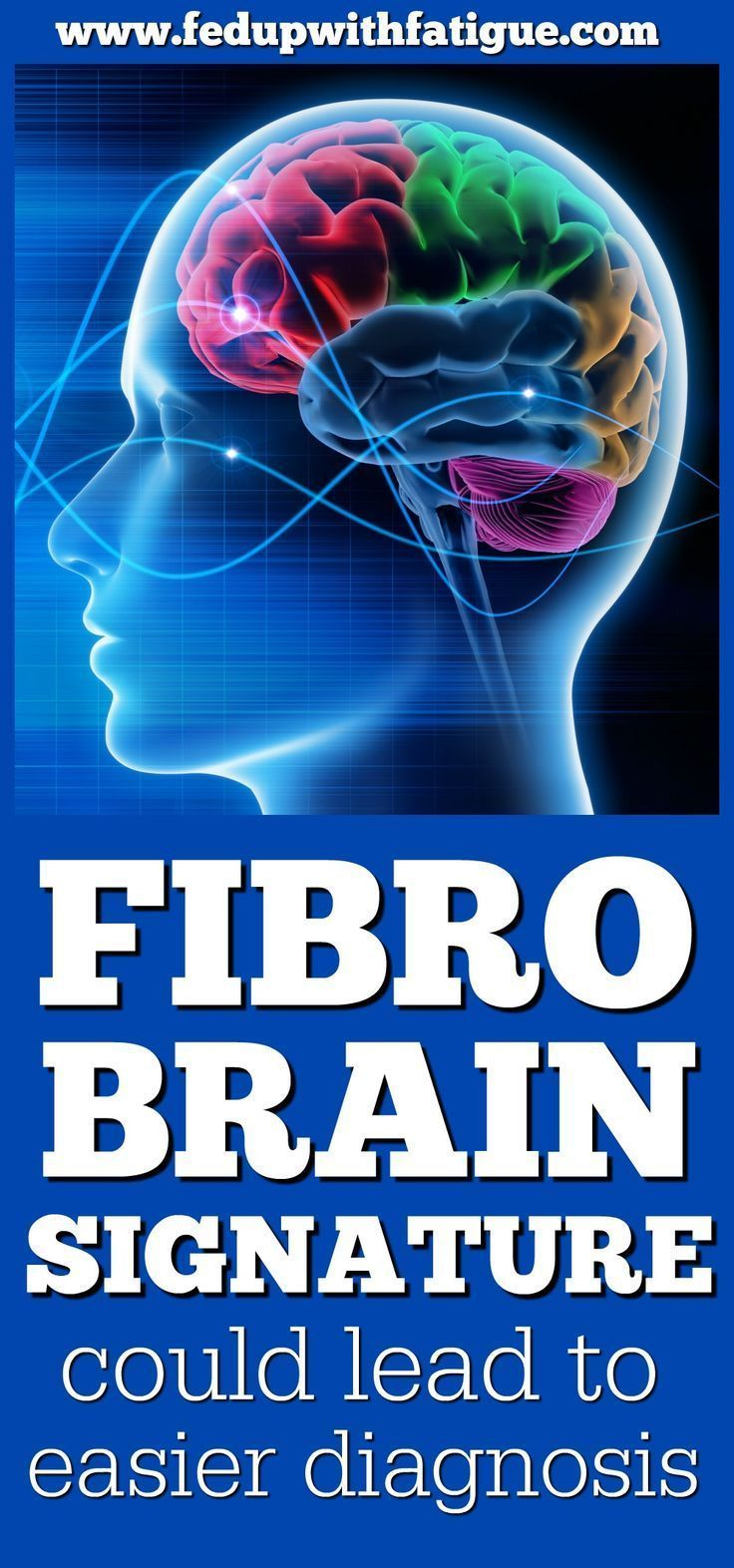University of Colorado Boulder researchers have identified a unique brain signature in fibromyalgia patients. The finding could eventually lead to the development of a diagnostic tool for fibromyalgia.