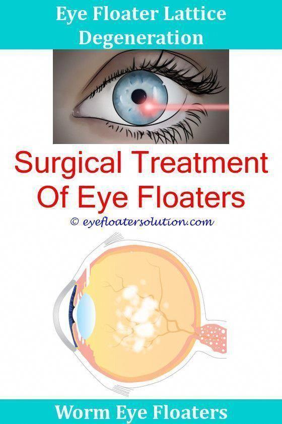 How Do Eye Floaters Go Away Vitreous Eye Floaters Treatment