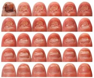 nail-fungus-treatment   Vicks Vapor Rub and Listerine!