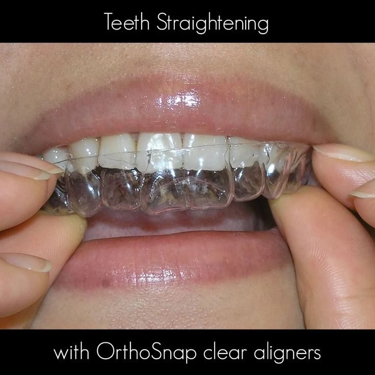 OrthoSnap New York | Straight Teeth Without Braces | Manhattan, Brooklyn and Long Island | 1.844.678.4676 | http://www.OrthoSnapNY.com/ | #braces #clearbraces #crookedteeth #smile #beauty #surprise #magicsmile #invisiblebraces #clearaligners #adultbraces #teeth #PerfectTeeth #style #newyork #nyc #city #dentist #orthodontist #bracesalternative #teenbraces #longisland #newyorker #newyorkstyle #newyorksmile #celebrity #perfectsmile #hollywoodsmile #correctcrookedteeth #model #healthy