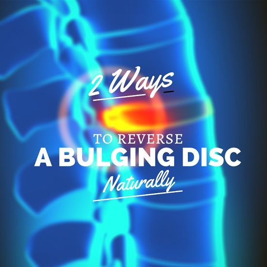 Bulging disc in lower back treatment - Without medication, without injections and certainly - Without surgery!