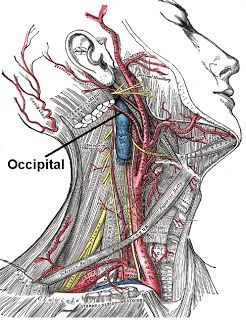 The root to all my headaches: Occipital Neuralgia Nerve Headaches....good thing for ciropractors